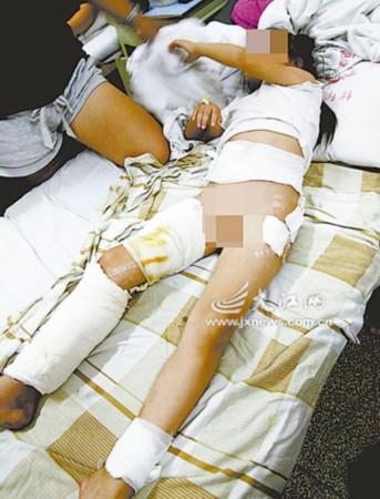 南昌7岁女童惨遭3条狼狗撕咬半小时 身上伤口50余处(图)