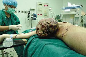 少女乳房肿瘤大如足球图