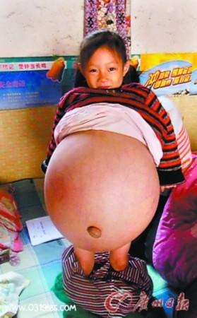肚子腹水内部结构图片