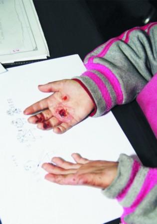 9岁女童拿家里钱遭父亲打火机烤手惩罚(图)