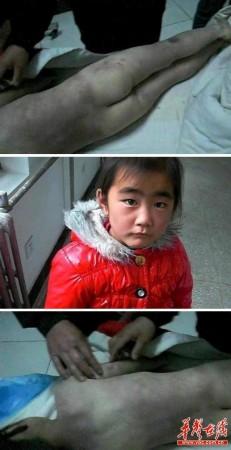 13岁小女孩尿道图_7岁女孩疑被继母虐待2年致死 涉案人被刑拘(图)_南海网新闻中心