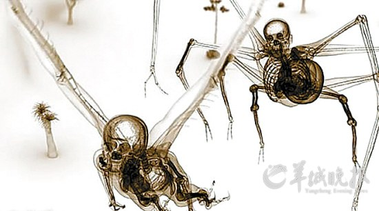 不同身体的骨骼密度不同,并尽可能多地参考正常的解剖结构来合成.