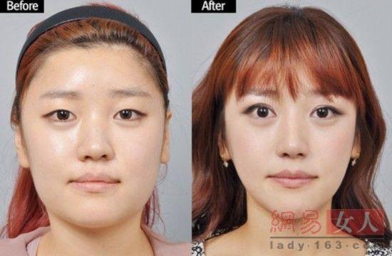 韩国整容节目嘉宾整容前后对比图-屌丝女 逆袭成美女 韩国整容节目爆图片