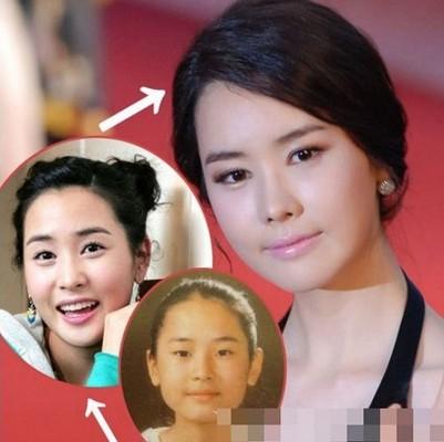 李多海/李孝利金喜善杨幂李冰冰中日韩明星整容前后对...