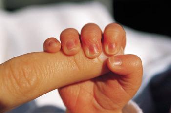 现在高龄产妇越来越多,导致早产儿和唐氏综合征的发生率也较高.图片