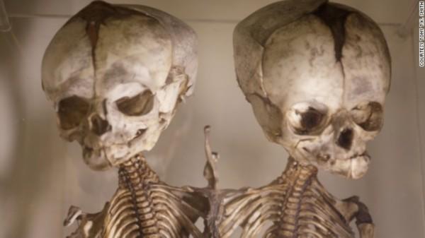 之旅 世界十大怪异医学博物馆盘点