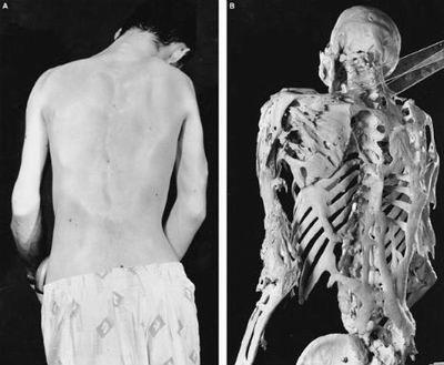 科学无解人体十大神秘怪病:每天200多次性高潮