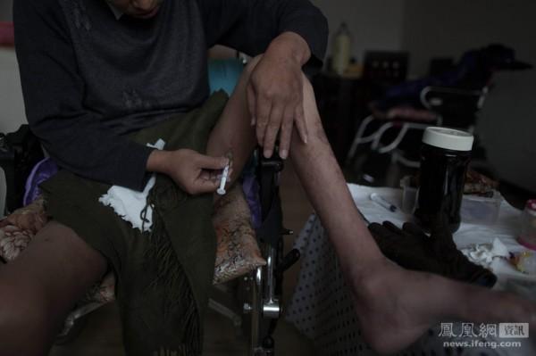 45岁 艾滋病患者