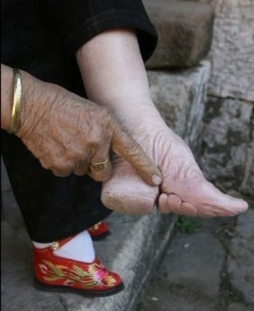 裹尖的时候往往得把脚趾向足底扭到屈无可屈的程度