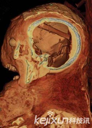 科学家在木乃伊头骨内发现的大脑移除工具