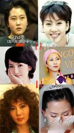 曝光10大韩国女星整容后遗症图片