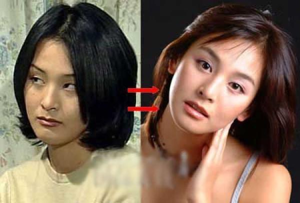 韩国首批整容者后遗症 戴着硅胶闯天下图片