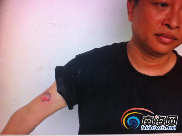 <b>海口电动车非法营运被查司机掐执法人员脖子咬伤民警</b>