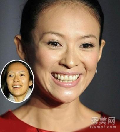 王菲赵薇张柏芝 11位女神皮肤粗糙+满脸褶子