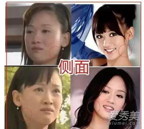 """《锦绣缘》陈乔恩""""被整容"""" 方脸变锥子脸"""