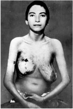 图为在纳粹集中营中成为人体试验品的犹太妇女,双乳已经腐烂.-纳图片