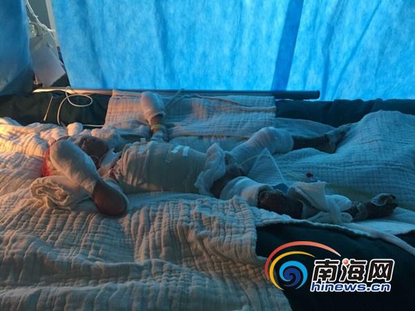 东方3岁男童六成皮肤被烧伤家庭贫困求助医疗费