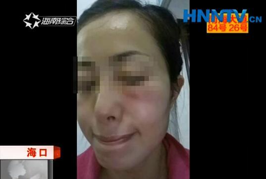 海口一女子脸部注射玻尿酸 事后反复红肿两个月