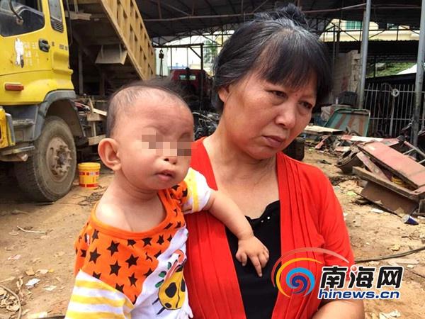 三亚:1岁半女童患怪病上下牙床粘合盼名医救治