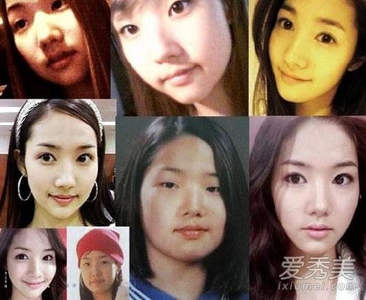 太吓人 饱受整容后遗症折磨的韩国女星图片