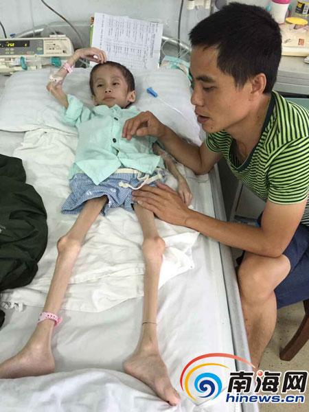 儋州7岁男孩患怪病体重仅20斤医疗费已花30万元盼救助