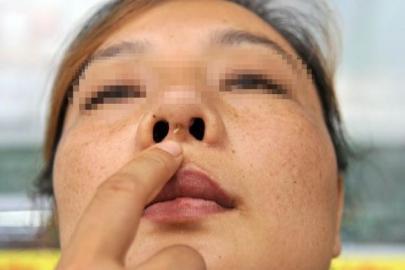 南海网 新闻中心 社会新闻 人间百态    李素鼻子整形后出现溃烂灌脓