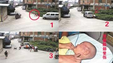 男婴脸被压车轮下众人抬车营救