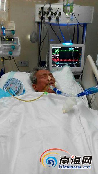 万宁乡村理发师患肠梗阻住院为女治病已耗尽家产