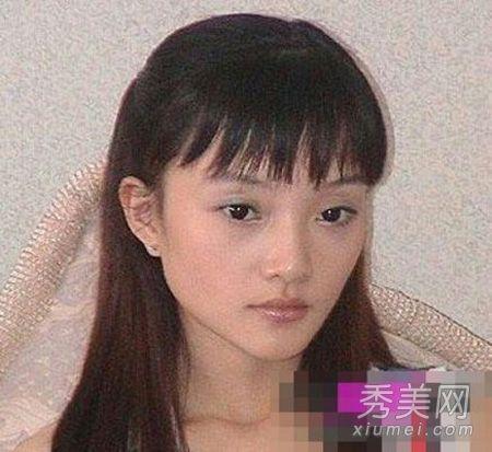 刘晓庆红裙现身脸歪嘴斜 组图揭女明星整容后遗症图片