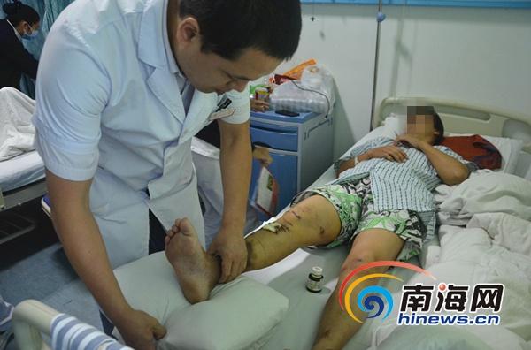 三亚:车祸女子术后十天重行走人工韧带起奇效