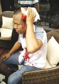 客人酒店喝茶被人打伤三亚一酒店员工袖手旁观