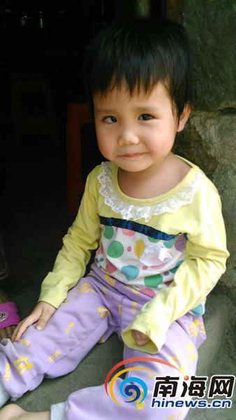 定安3岁女孩视力衰退行走困难家中窘困盼救助