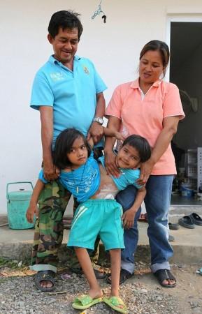 泰国连体双胞胎姐妹共同生活不愿与彼此分离图片
