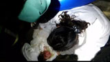 刚出生男婴被遗弃女厕 消防员倒立进粪坑救人