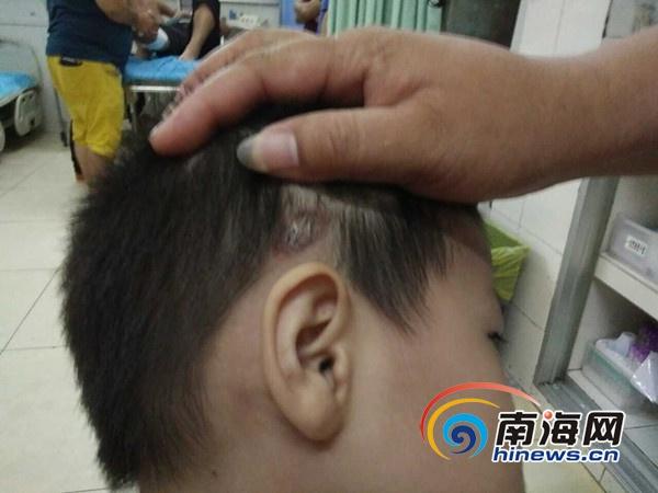 海口市民称孩子在幼儿园遭体罚回应:用力挣脱老师后撞伤