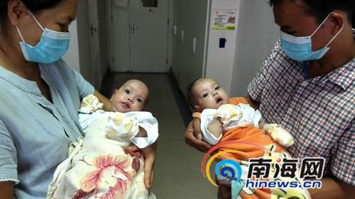 东方连体女婴成功分离将出院已收爱心捐款9万元
