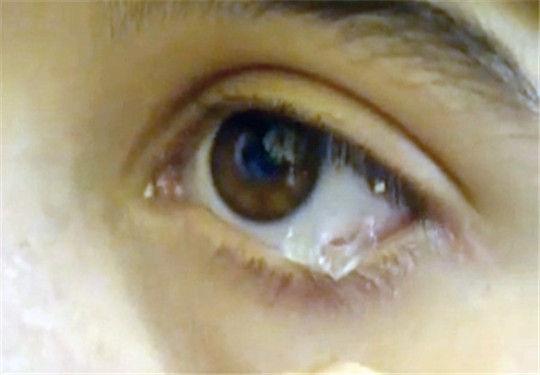类似的案例是一个眼睛里会哭出水晶的黎巴嫩女孩.