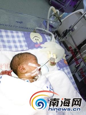 万宁女子产下龙凤胎后大出血儿子患膈疝病情紧急