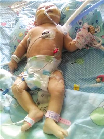 琼中2个月大婴儿患多种疾病母亲向爱心人士求助